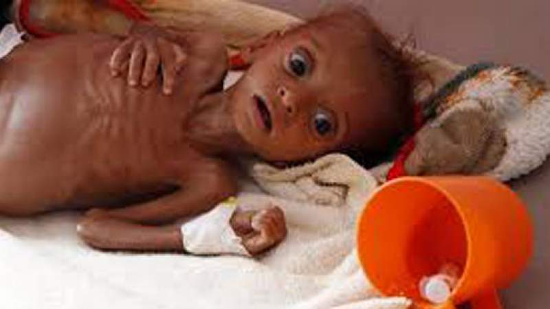 The Guardian: Yemen on Brink of Losing Entire Generation of Children to Hunger, UN Warns